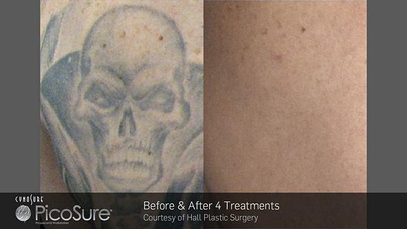 tn_BA_PicoSure_Hall-Plastic-Surgery_Post4Tx_Tattoo_web1